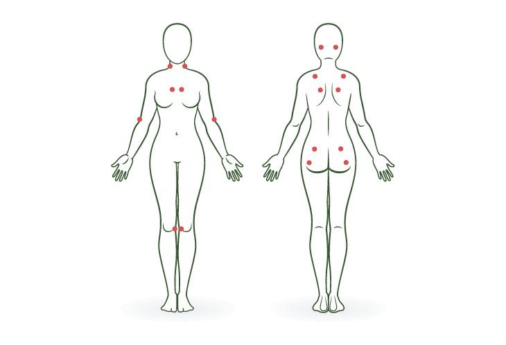18 puntos de la fibromialgia - cannamedicol