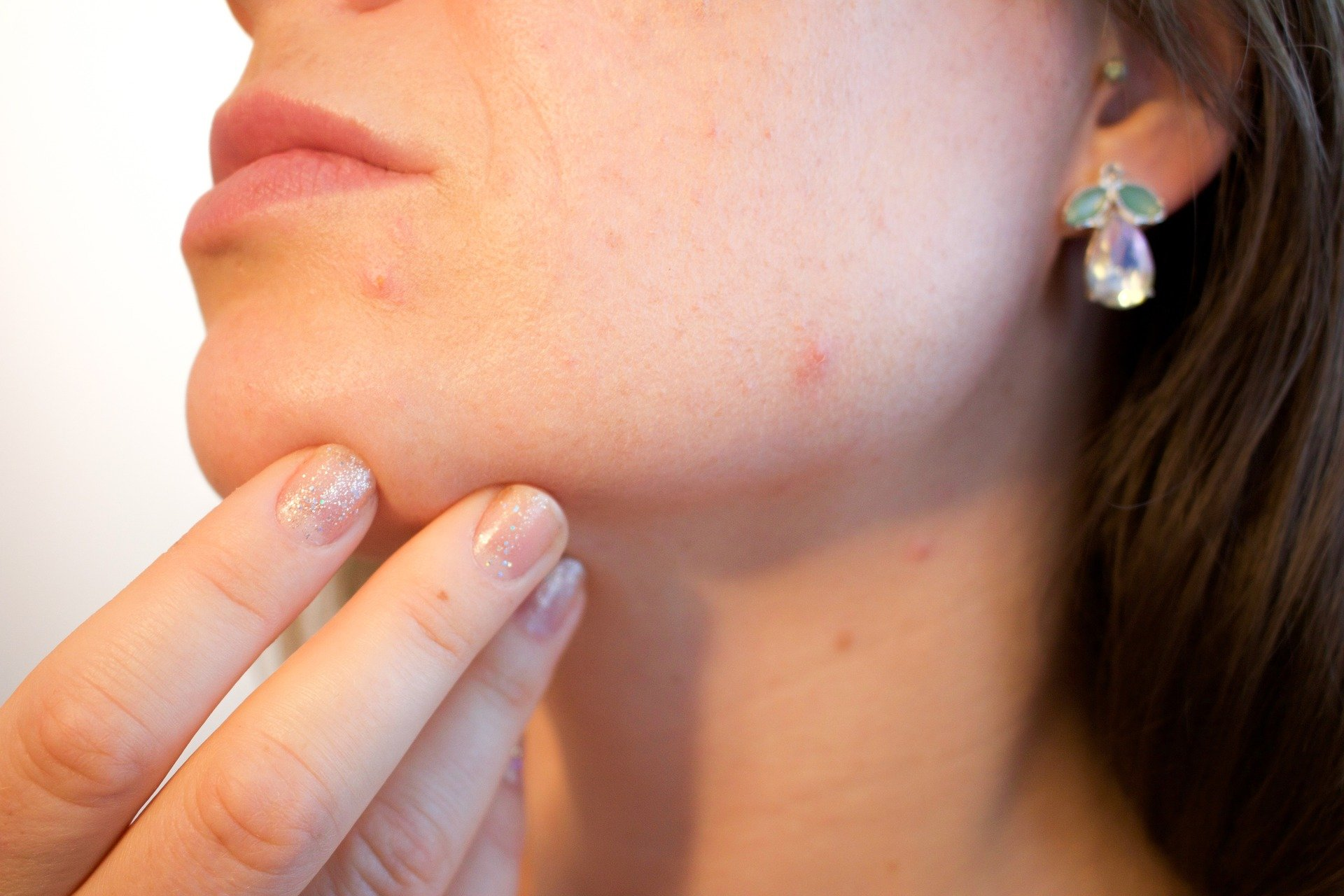Cuidado de la piel y el cannabis post thumbnail