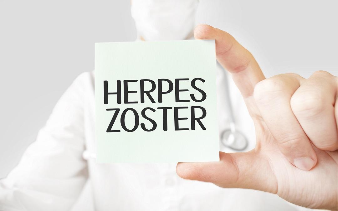Tratamiento del Herpes Zoster o culebrilla con cannabis post thumbnail